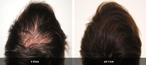 Håravfall, tunt hår