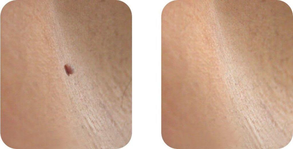 Borttagning av Vårtor, Fibrom & Skin tags